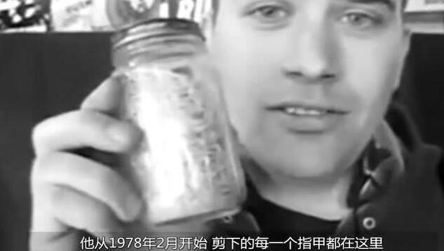 两年脱落的指甲就能装满满一瓶子