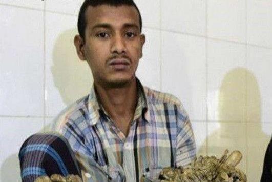 印度一男子得怪病,长满树枝,妻子生完两个孩子后,弃他而去!_图1