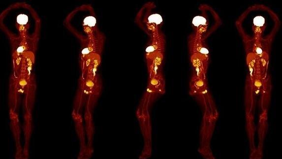 全身PET掃描可數秒成像