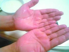 重庆一名16岁少女一年四季四肢冒汗像水洗