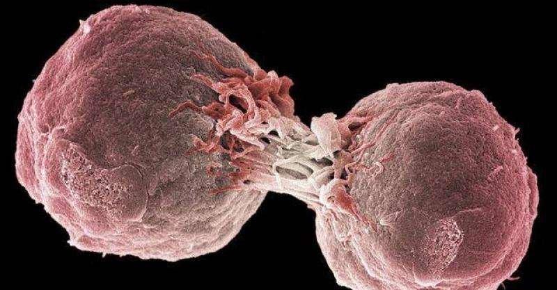 新基因疗法成功挽救淋巴瘤患者